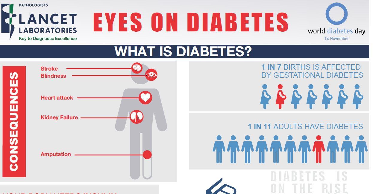 Eyes On Diabetes